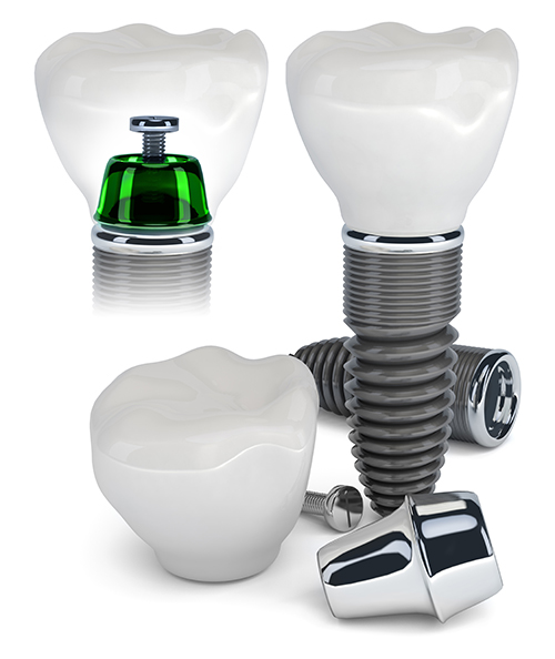 Huntington Implant Dentist