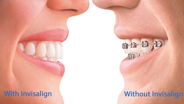 Invisalign in Huntington