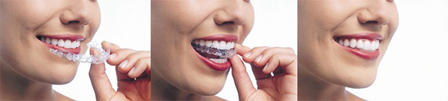 Huntington Invisalign